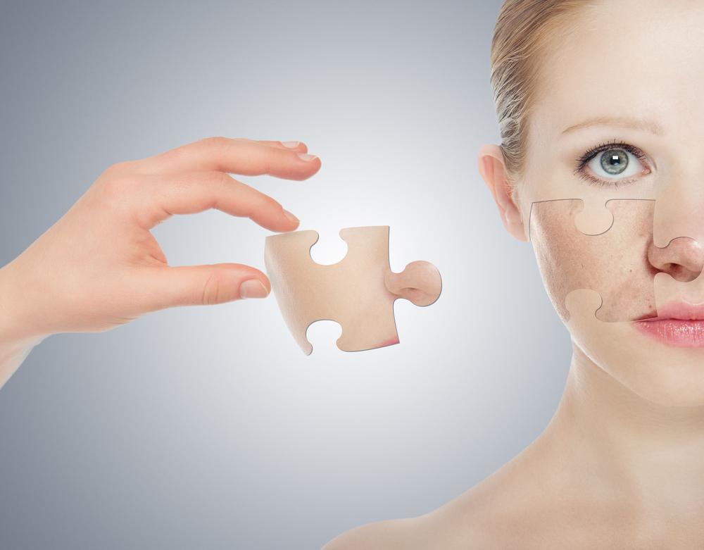 acné-cicatrice